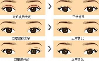 上海双眼皮修复好吗