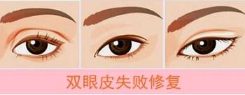 上海双眼皮修复难吗