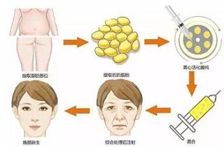 自体脂肪能填充脸上哪些位置