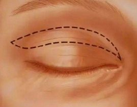 切开双眼皮的具体过程是怎么切的