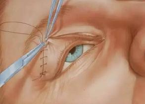 切开双眼皮手术的过程
