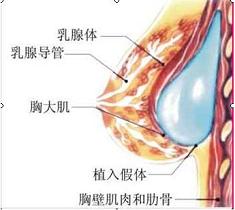 假体隆胸不影响哺乳