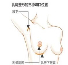 上海乳房下垂矫正的切口明显吗