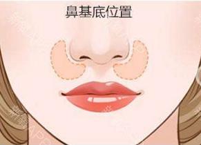 垫高鼻基底手术