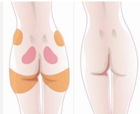 自体脂肪移植抽取哪个部位?