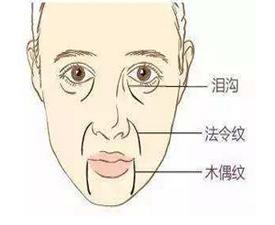 在上海如何去除脸上的三八纹