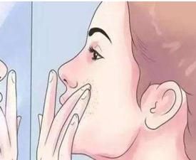 脸上长黄褐斑的原因有哪些