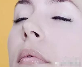 鼻综合手术要知道的关键点