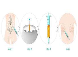 自体隆胸的优点和缺点