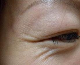 眼部细纹怎么缓解