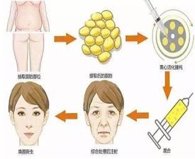 自体脂肪移植是怎么移植的