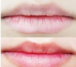 嘴唇上长皱纹的原因
