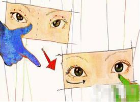 开眼角手术的后遗症和风险