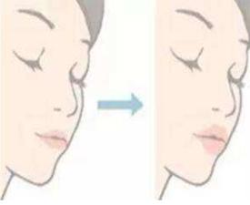 玻尿酸和自体丰唇相比如何