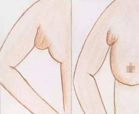 什么是真性副乳和假性副乳