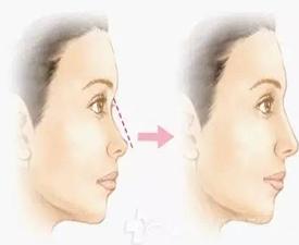 玻尿酸隆鼻能维持多久