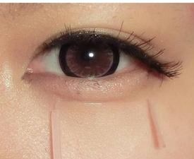 卧蚕和眼袋有什么不同