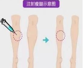 注射微整形瘦腿