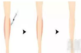 什么是瘦腿