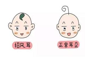 上海招风耳矫正