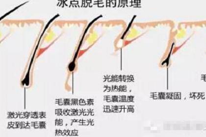 上海艺星激光脱毛可以吃辣吗?