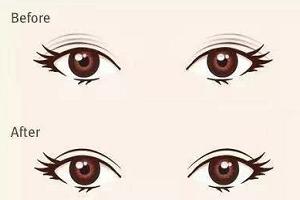 双眼皮手术失败 补救方法有多种