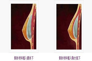 假体隆胸术后效果自然吗