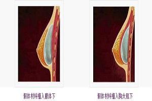 假体隆胸术有哪些优势呢