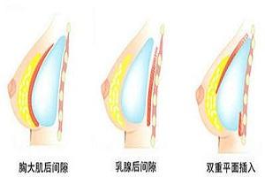 假体隆胸可以选择哪几种材料进行呢