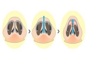 常用的鼻翼整形方法有哪几种呢