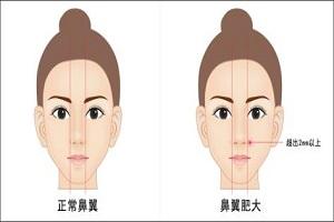 鼻翼缩小手术前后需要注意些什么呢