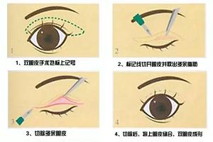 双眼皮手术后要注意哪些问题呢