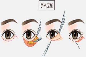 手术去眼袋可以保持多久呢