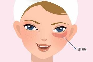 去眼袋手术后效果是永久的吗