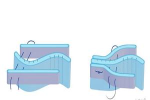 歪鼻矫正的手术方式是怎样的呢