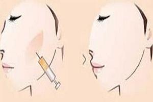 丰面颊的几种效果好的方法