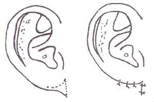 耳垂再造术的效果怎么样