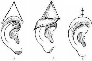 隐耳矫正手术的适应症有哪些呢