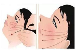 面部的皱纹该如何消除呢