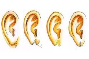 杯状耳修复的手术过程
