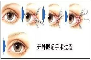 开眼角手术恢复期大概是多久