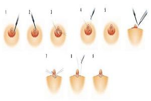 乳头缩小术的注意事项有哪些