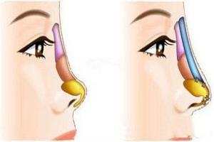 假体材料决定隆鼻方法