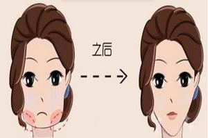 瘦脸的效果能坚持多久