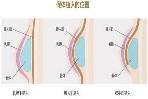 假体隆胸手术该怎么注意保养