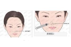 注射隆鼻材料也能取出