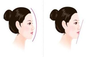 隆鼻方法都有哪几种