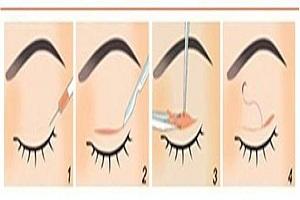 双眼皮手术真的那么简单吗
