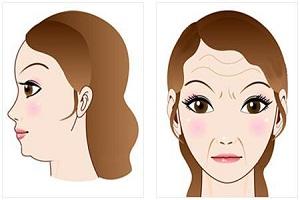 玻尿酸除皱 重现年轻美丽容颜