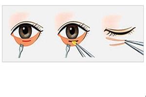 去眼袋手术的效果怎么样